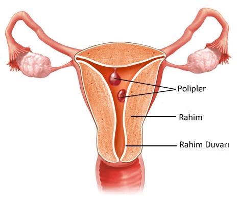rahim-polipleri